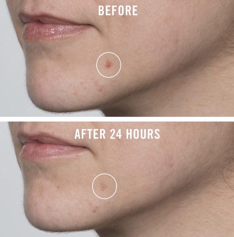 First Aid Beauty Pharma BHA Acne Spot Treatment